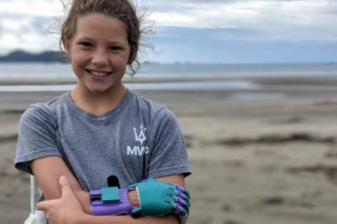 Casal-usa-lixo-do-oceano-para-fazer-próteses-para-crianças-758×396